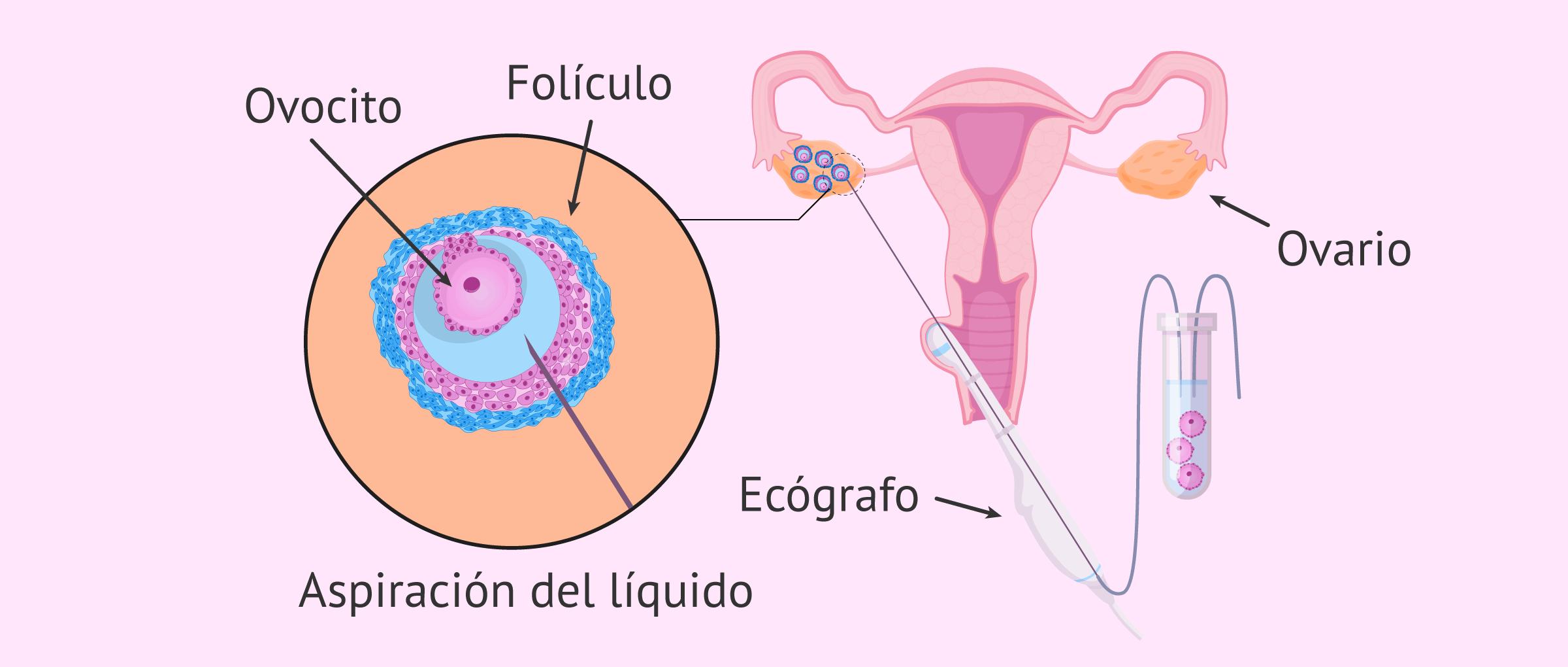 ¿Cómo es la punción folicular para las donantes de óvulos?