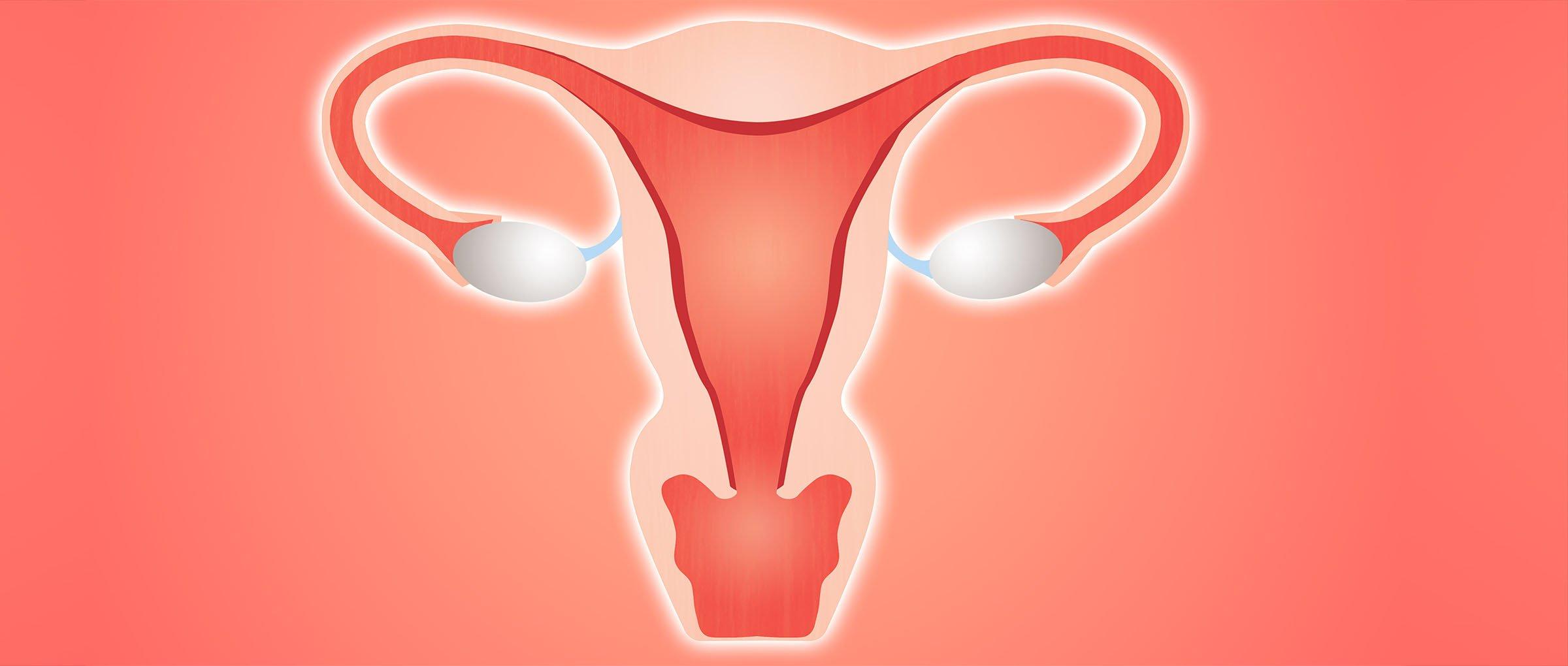 Preparar el endometrio