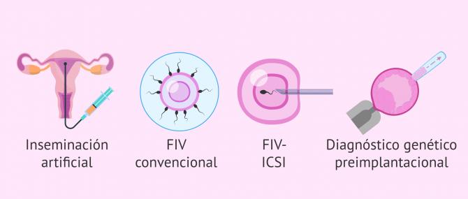 ¿Qué tipos de técnicas de reproducción asistida existen?
