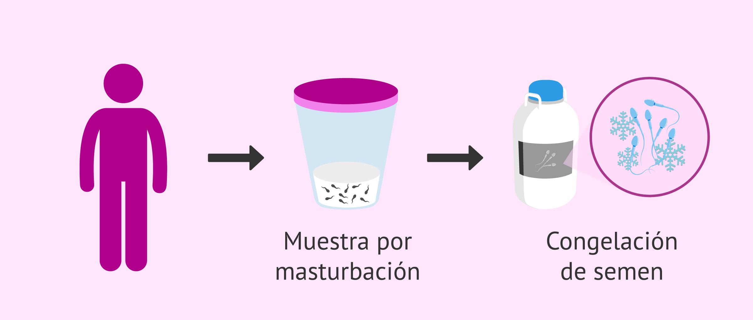 Preservación de la fertilidad masculina