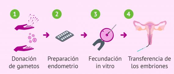 FIV con donación de óvulos y semen: indicaciones, precio y tasas de éxito