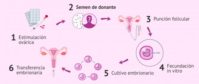 Imagen: Pasos para la FIV con semen de donante