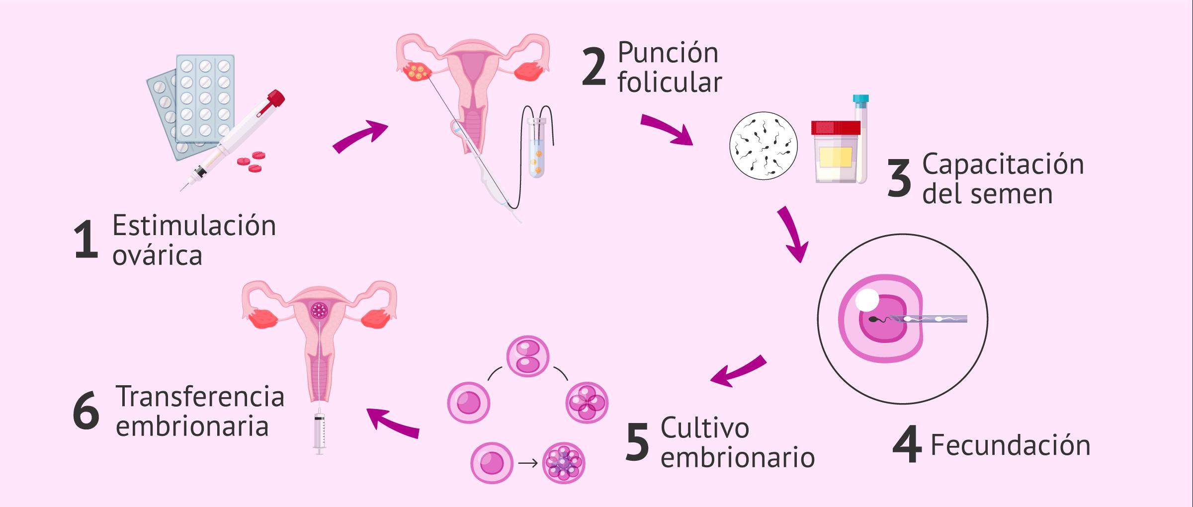 Proceso de la fecundación in vitro