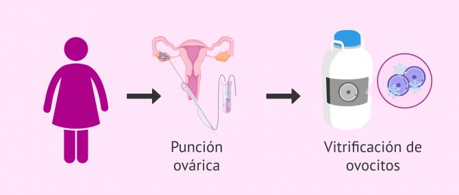 Imagen: Preservación de la fertilidad femenina