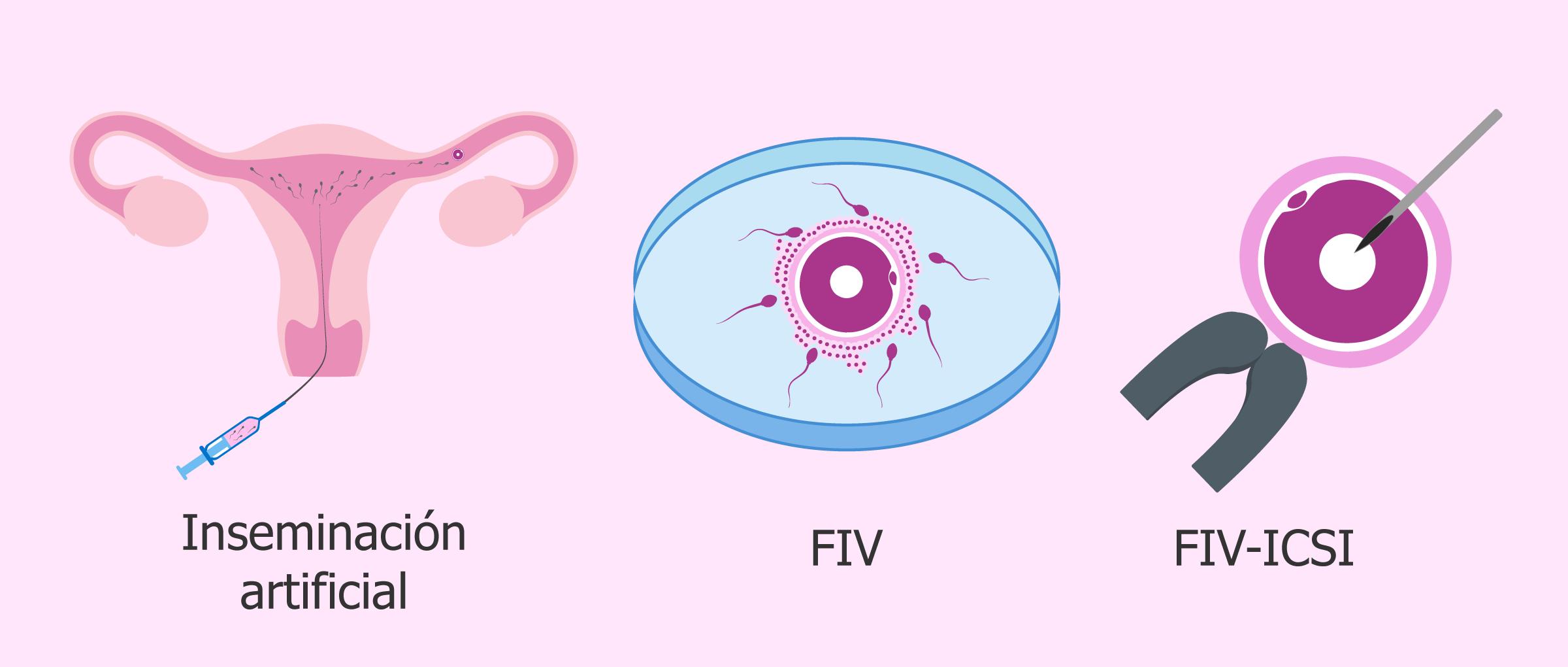 Técnicas con esperma de donante