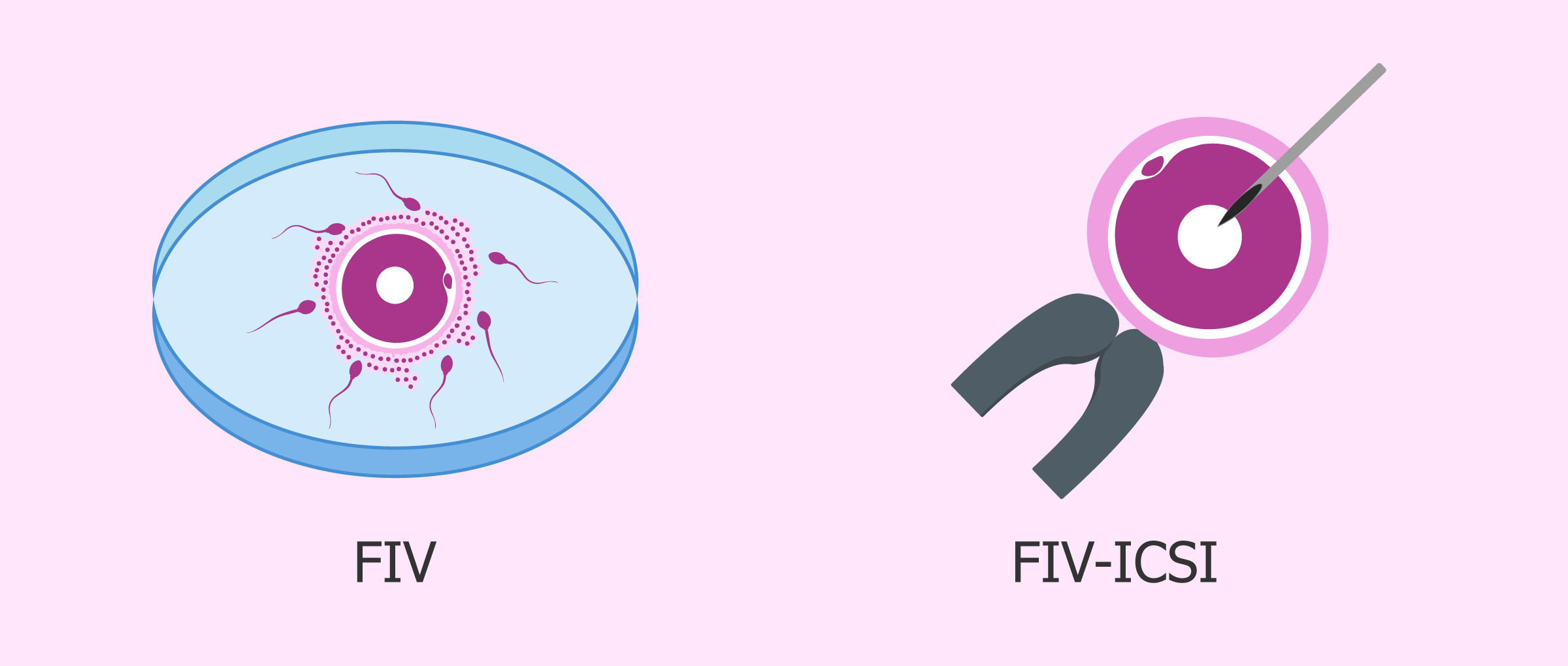 FIV e ICSI
