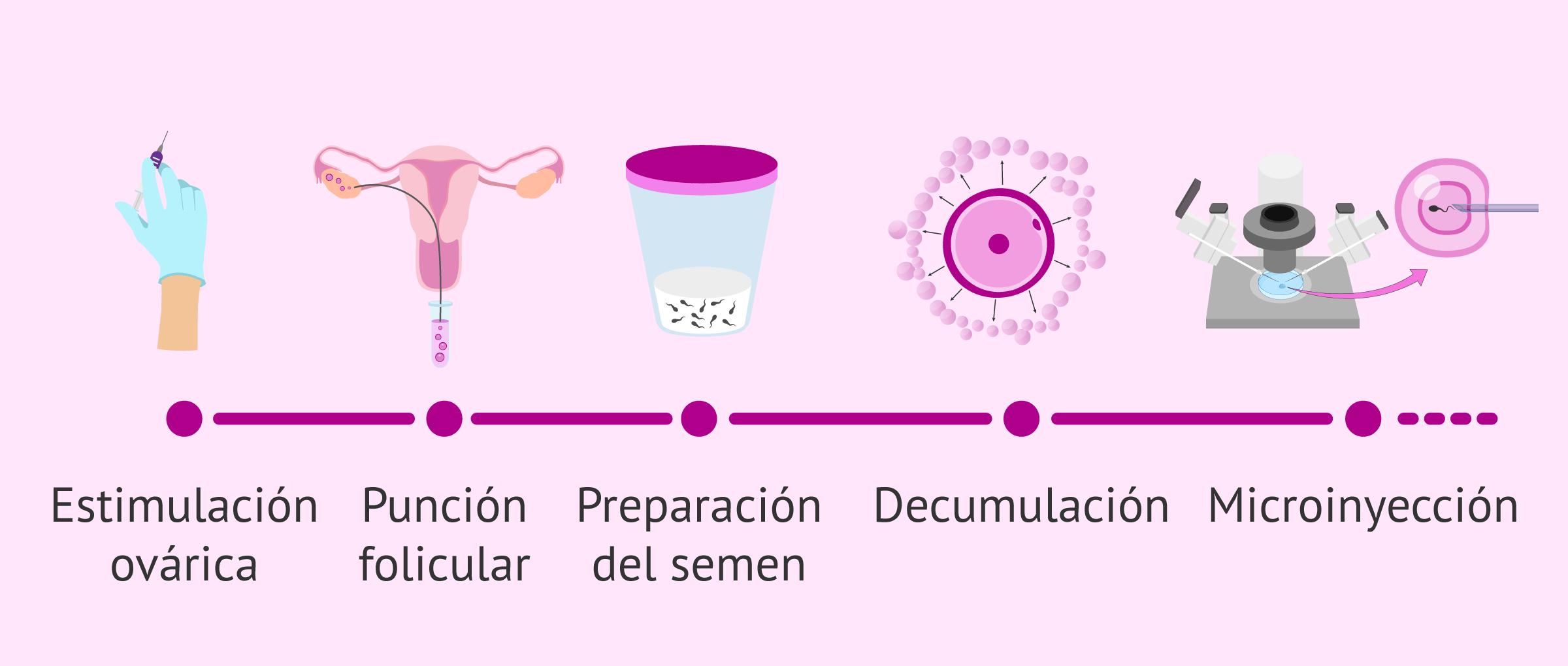 ¿Qué es la ICSI o inyección intracitoplasmática de espermatozoides?