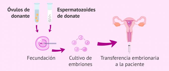 Imagen: FIV con doble donación de gametos