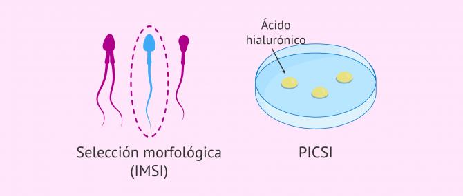 Imagen: IMSI y PICSI para la selección espermática