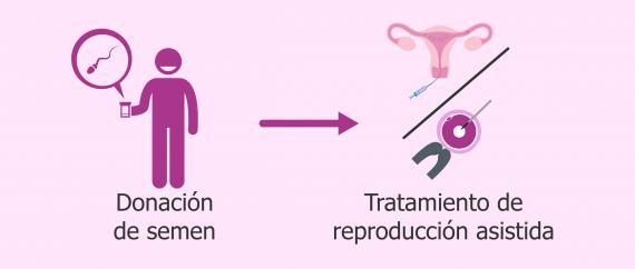 ¿En qué casos se recurre a la donación de esperma?