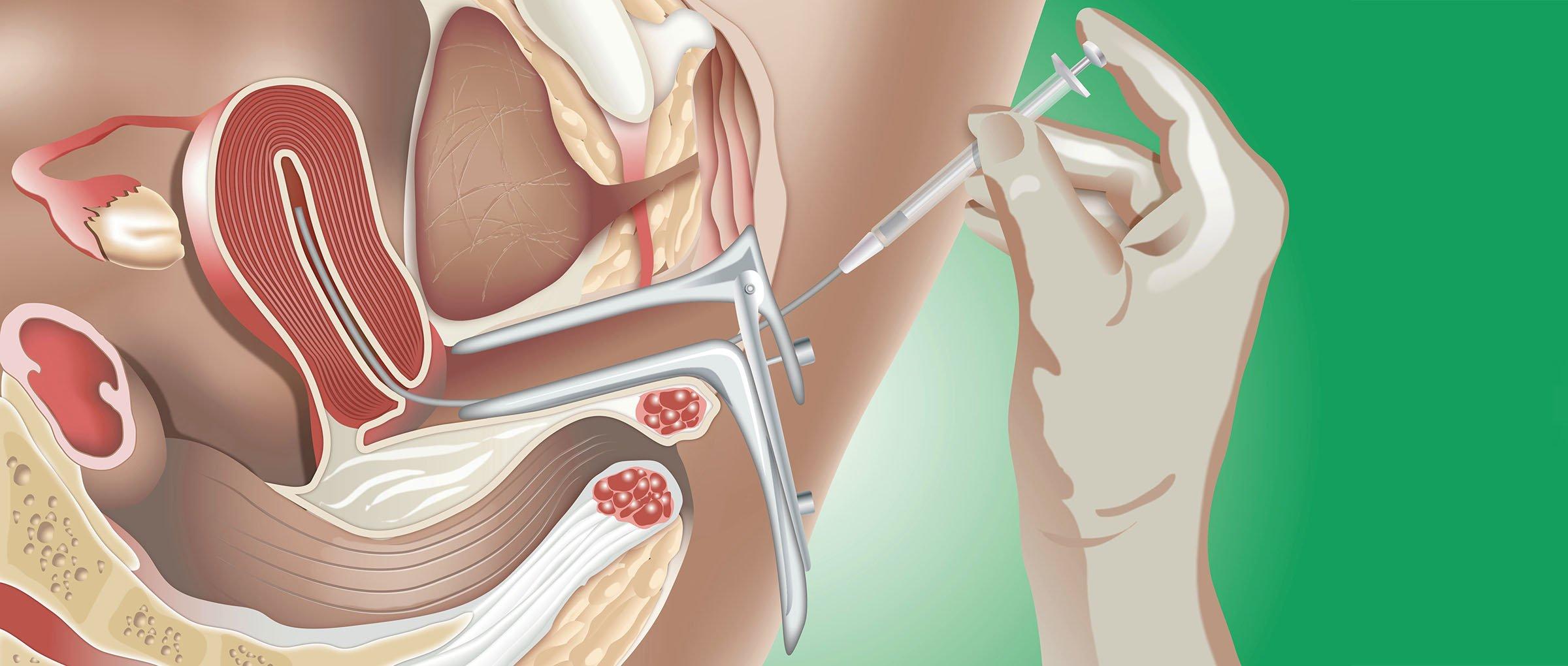 Técnica de inseminación intrauterina