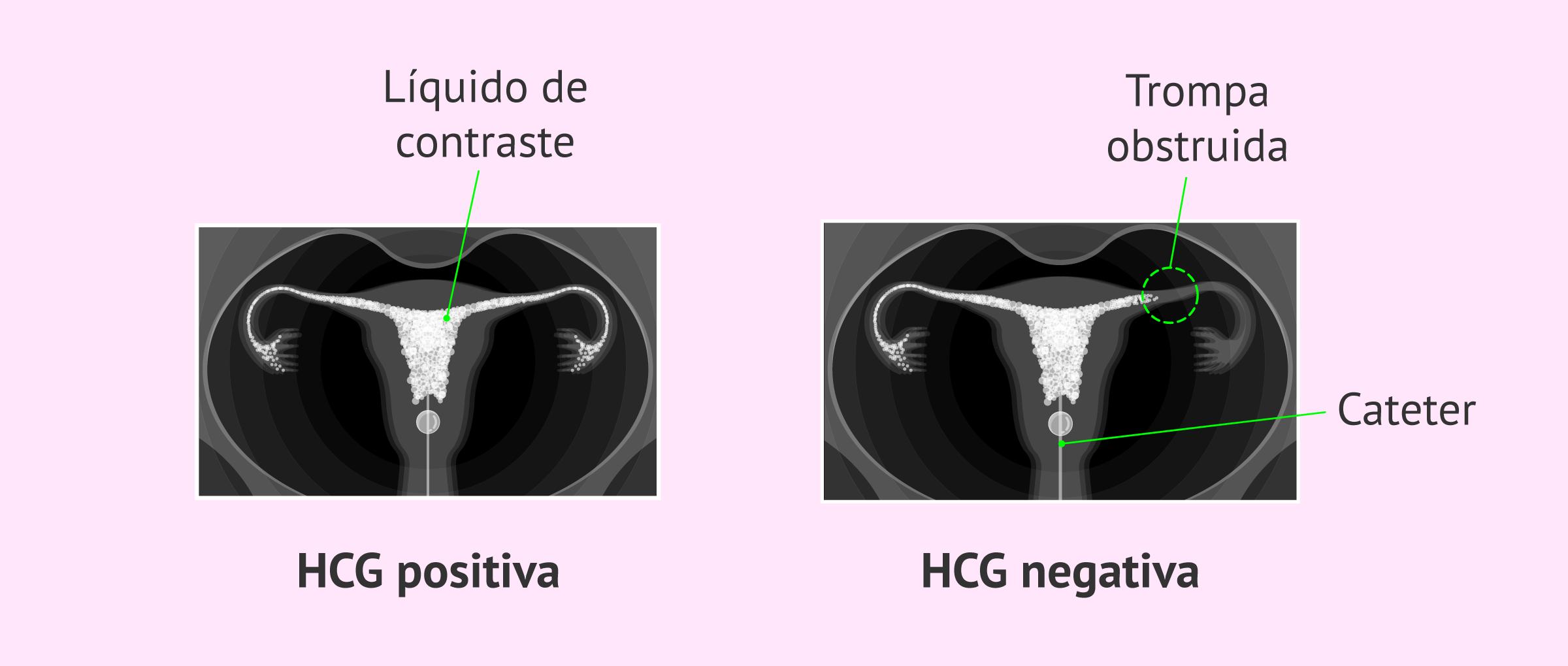 La histerosalpingografía: preparación, procedimiento y precio