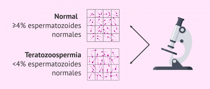Imagen: Muestra seminal normal y muestra teratozoospérmica