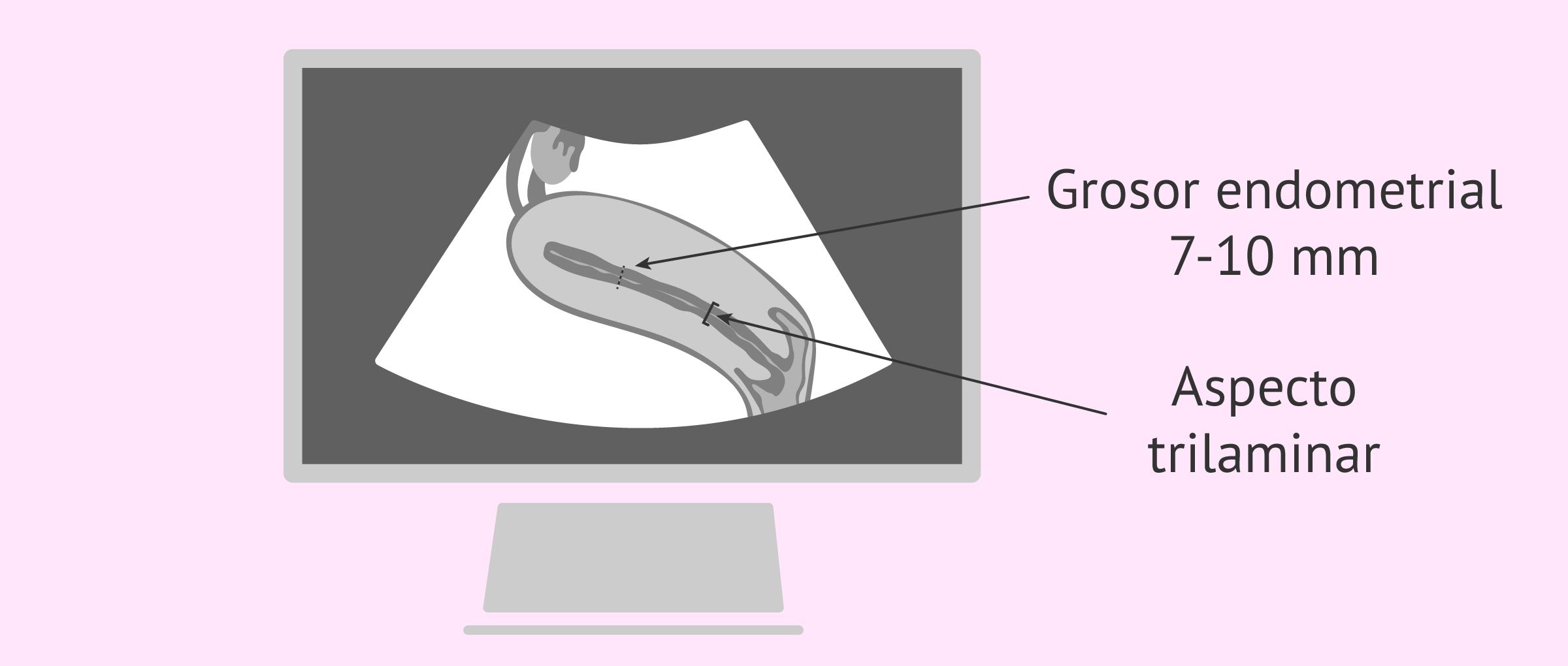 Control ecográfico del grosor endometrial