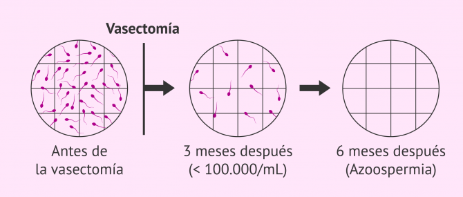 Imagen: Resultado del seminograma tras una vasectomía
