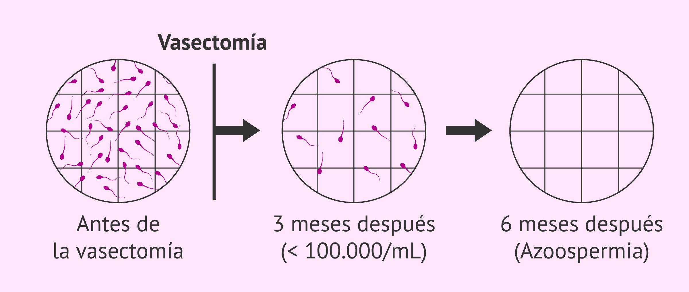 ¿Qué es la vasectomía y cómo se hace? - Posibilidad de embarazo