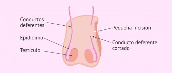 Imagen: ¿Cómo se hace la vasectomía?