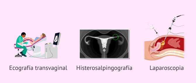 Imagen: Pruebas diagnósticas para el hidrosalpinx