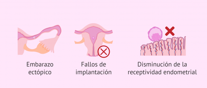 Imagen: ¿Cómo afecta el hidrosalpinx a la fertilidad?