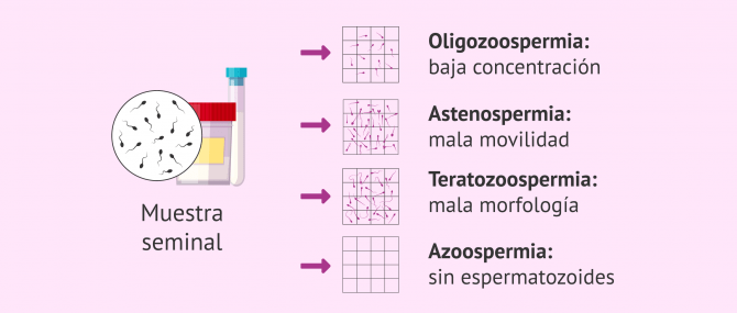 Imagen: Alteraciones seminales y uso de donante de semen