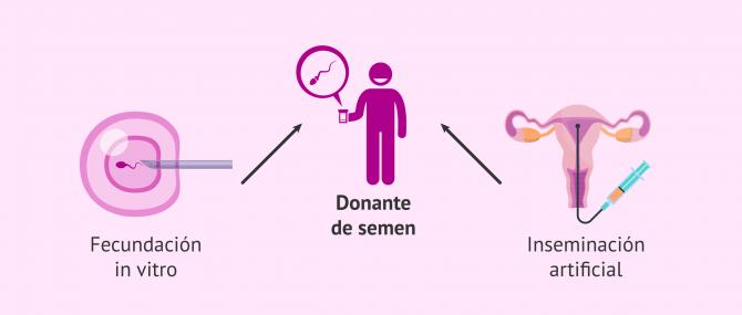 Imagen: Tratamientos de fertilidad con semen de donante