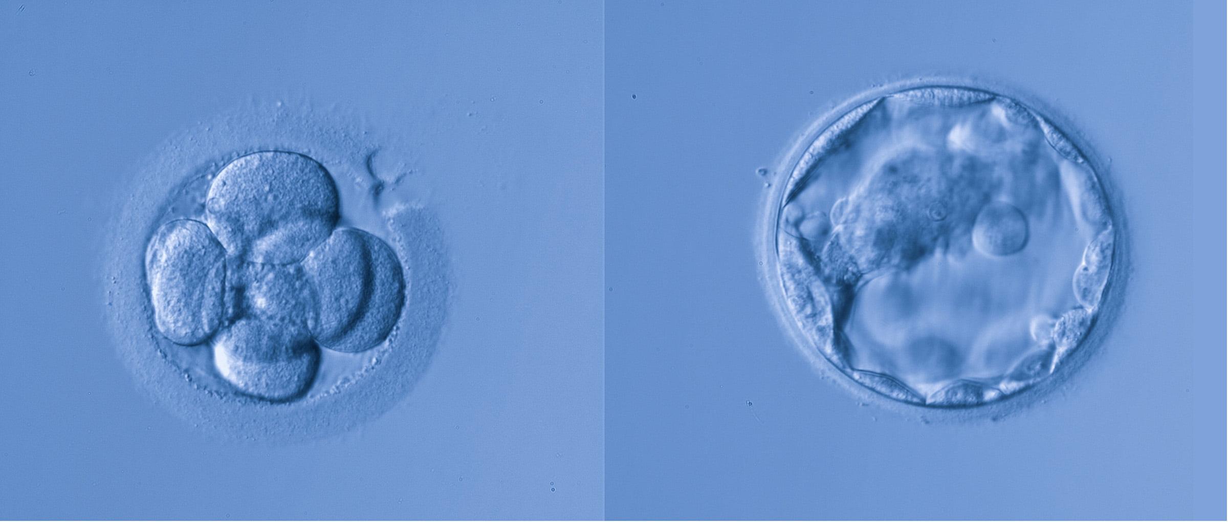 Transferencia de embriones en República Checa