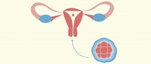 Transferir embriones