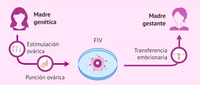 Imagen: método ROPA