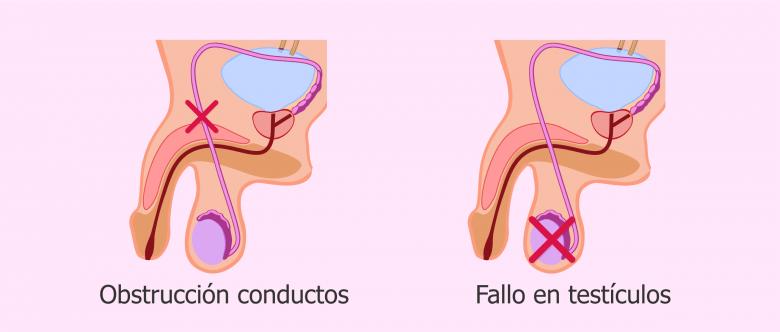 Tipos de azoospermia: obstructiva y secretora
