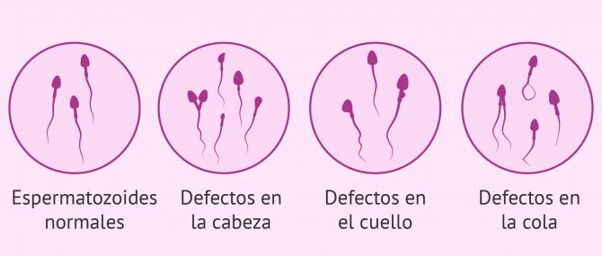 Imagen: Espermatozoides anormales