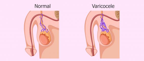 Varicocele: causas, síntomas y tratamiento