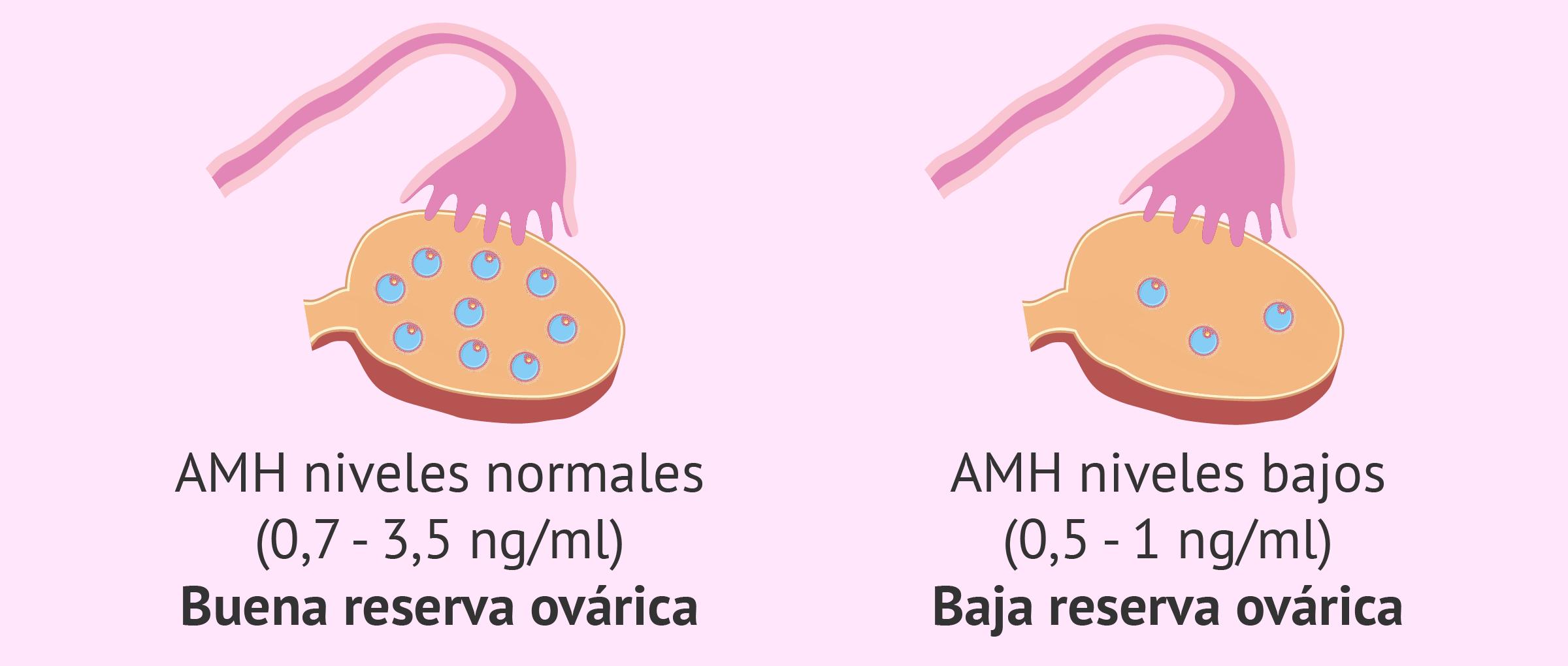 Relación entre los niveles de AMH y la reserva ovárica