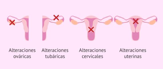 Esterilidad femenina: síntomas, causas y tratamiento