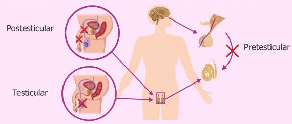 Esterilidad masculina: principales causas y tratamiento