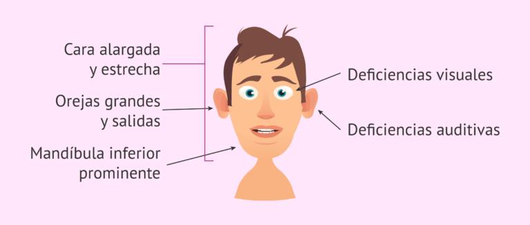 X-frágil: rasgos faciales