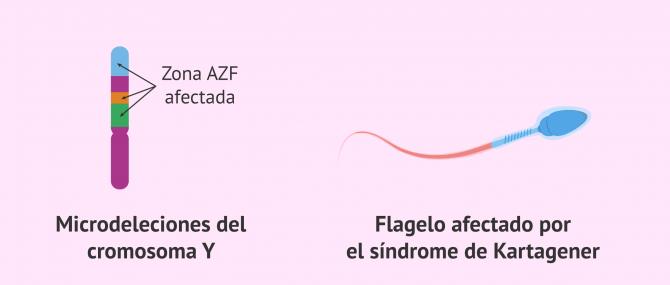 Imagen: Astenozoospermia y genética