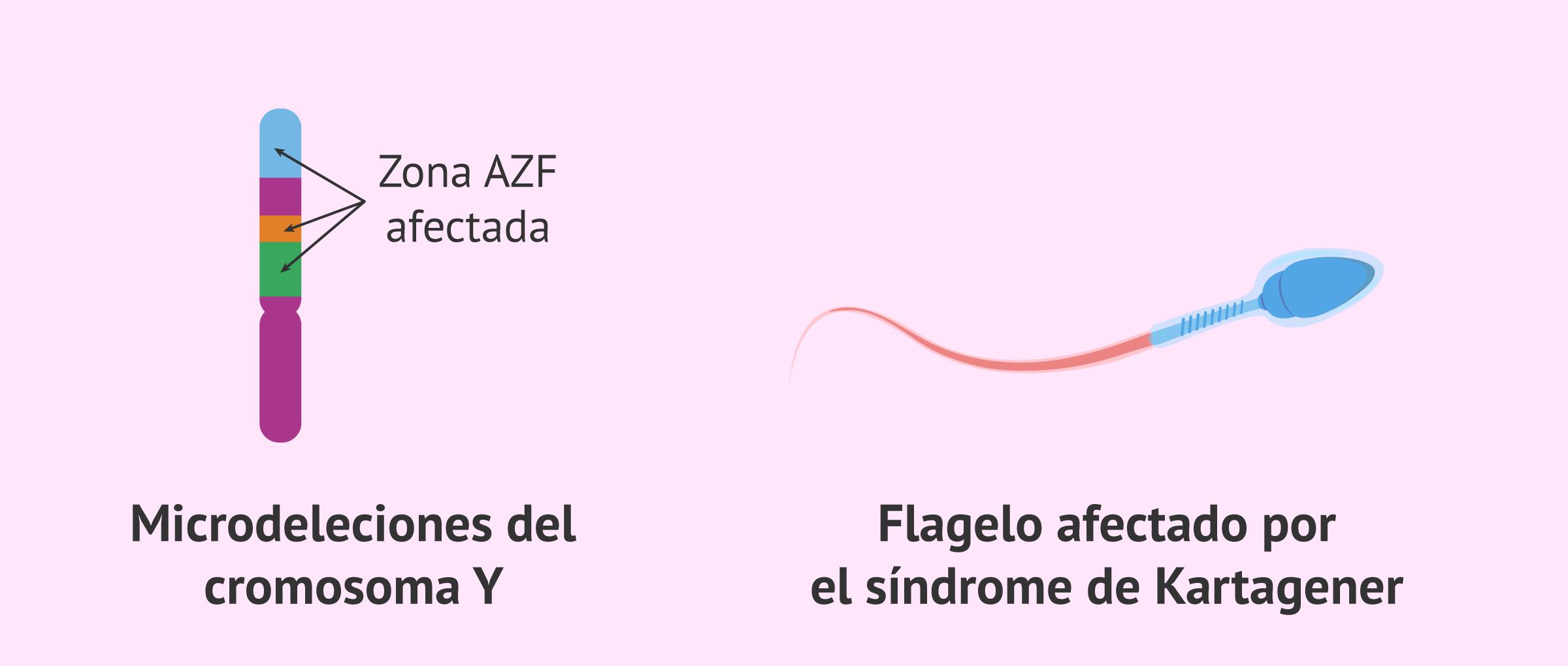 Astenozoospermia y genética