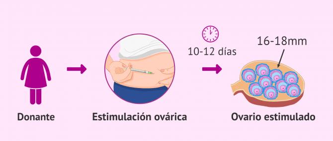 Imagen: Estimulación ovárica para la donante de óvulos