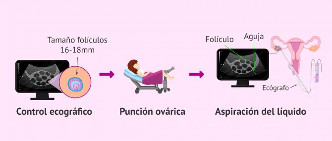 Imagen: Punción ovárica para la donante de óvulos