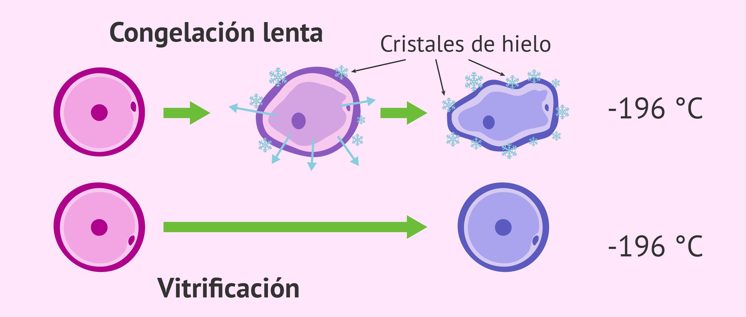 Ovodonación con óvulos congelados: ¿Influye en el porcentaje de éxito?
